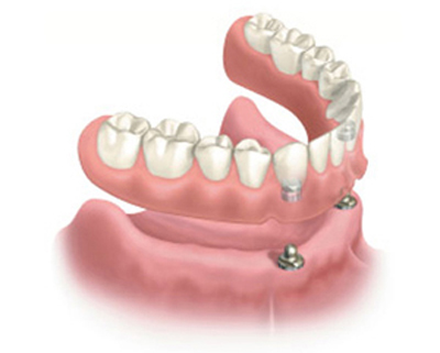 Diagram of snap-on dentures. Dental implants are in the lower jawbone, and a denture with attachments in the base is hovering above the gumline.