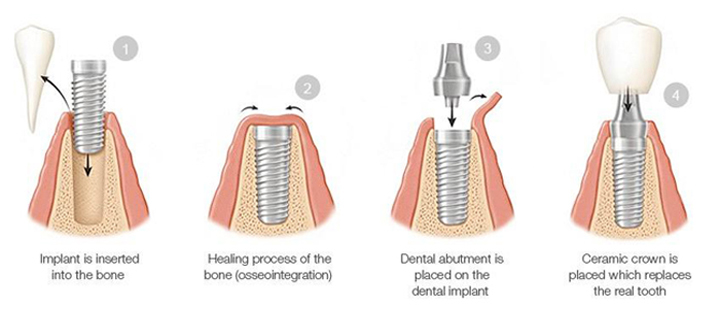 Horizontal diagram of four phases of the dental implant process: 1 - implant inserted in bone; 2- healing process; 3- placement of the abutment, or connector; 4 dental crown is attached to the abutment.