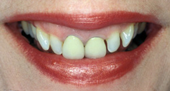 Before metal-free dentistry photo of a patient's smile. She has numerous damaged teeth that are unevenly spaced.