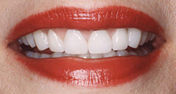 After metal-free dentistry photo of a patient's smile that was restored with dental crowns. The damaged teeth and spaces between them were corrected.