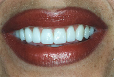 After porcelain veneers photo of a female patient's smile. Her teeth have been whitened, lengthened, and spaces between them were removed.