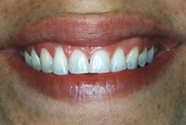 Before porcelain veneers photo of a female patient's smile. Teeth are uneven and the center teeth have a triangle between them.