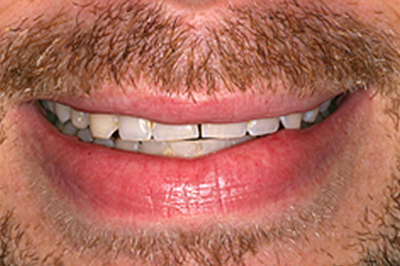 Lips and teeth before smile makeover photo of a male patient; from the office of Baton Rouge dentist Dr. Brooksher. There is a gap between the center front teeth, and the patient's teeth are yellow and uneven.