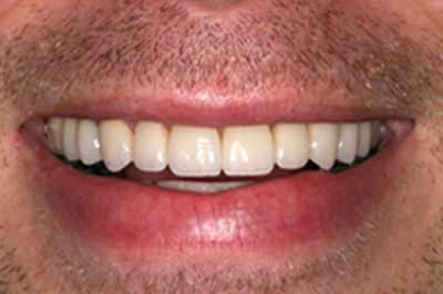 Lips and teeth after smile makeover photo of a male patient; from the office of Baton Rouge dentist Dr. Brooksher. The gap was closed between his center front teeth, all teeth are white, well-shaped, and symmetrical.