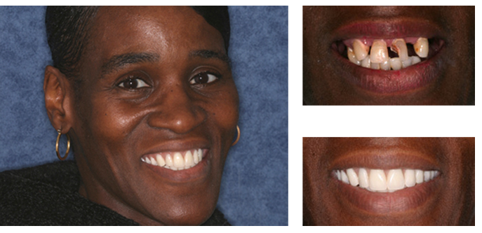 Dentures full-face after photo and close-up smile before-and-after photos of a patient of Baton Rouge dentist Dr. Steven Brooksher. The patient's previous decayed and missing teeth were extracted and replaced with beautiful dentures.