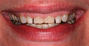 Cosmetic dentistry before close-up photo of a female patient's gummy smile with worn and teeth chipped with spaces between them – from the office of Baton Rouge dentist Dr. Steven Brooksher.