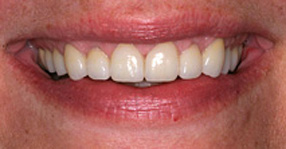 Cosmetic dentistry after close-up smile of a female patient who received porcelain crowns to restore worn and teeth chipped with spaces between them – from the office of Baton Rouge dentist Dr. Steven Brooksher.