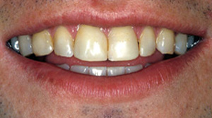 Close-up photo of a male patient's lips and teeth before dental bonding. Teeth that were dark, worn, chipped, and uneven were restored by Baton Rouge cosmetic dentist Dr. Brooksher.