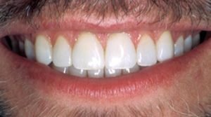 Close-up photo of a male patient's lips and teeth after dental bonding. Teeth that were dark, worn, chipped, and uneven are now white, even, and expressive.