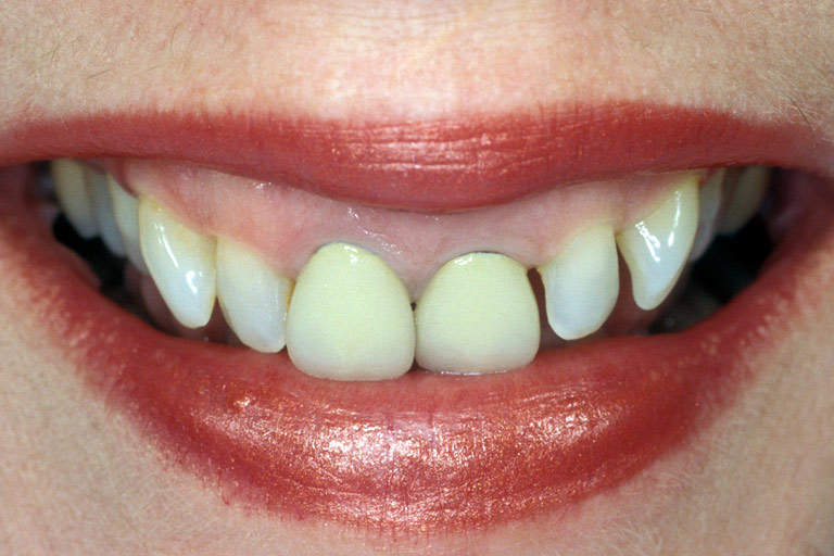 Closeup photo of Gracie smiling showing gaps before smile makeover