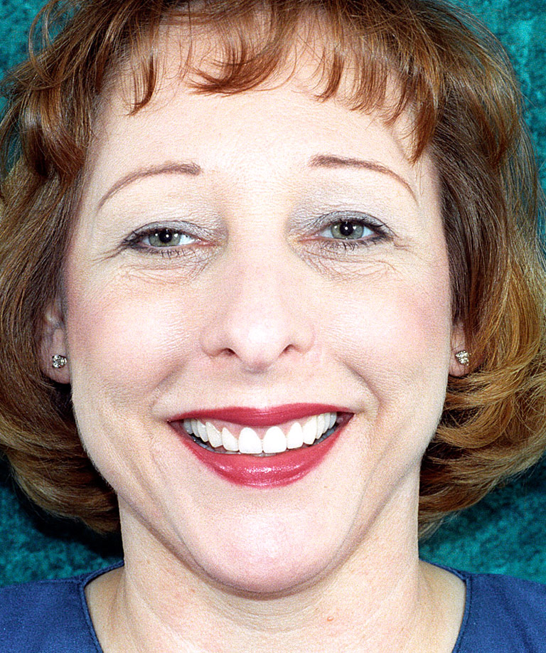 Headshot photo of Gracie smiling showing smile makeover results from Dr. Brooksher