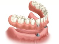 Diagram of a snap-on denture. The denture is hovering above the jawbone that has two dental implants in it.