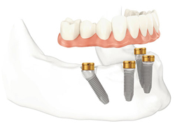 Diagram of implant overdentures. Four dental implants are in the lower jawbone and the back set are angle backwards. An arch of teeth is hovering above the implants.