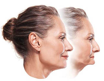Profile photo of a middle-aged woman with her hair pulled back in the forefront. Her jawbone is intact and supporting her facial muscles. The profile photo behind it facial sagging that results when all teeth are missing; for information on implant overdentures from Dr. Brooksher in Baton Rouge.