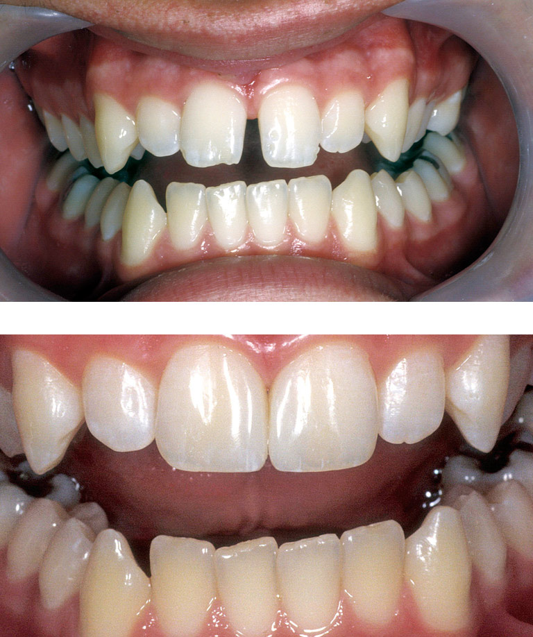 Closeup photos of Jacy smiling showing smile makeover results
