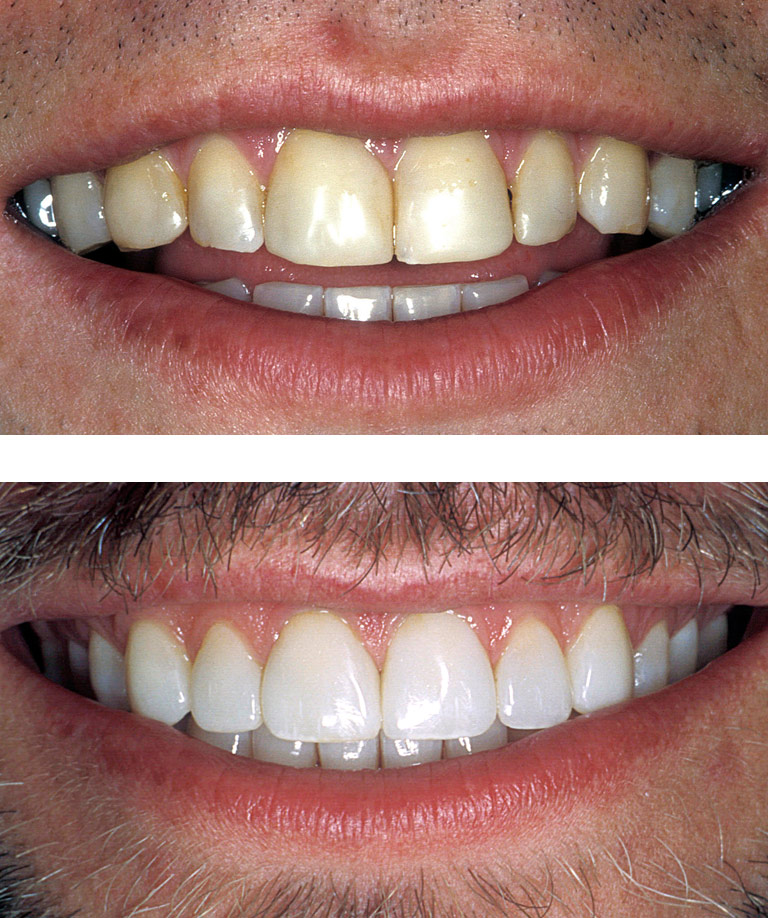 Closeup photos of Kurt smiling showing smile makeover results