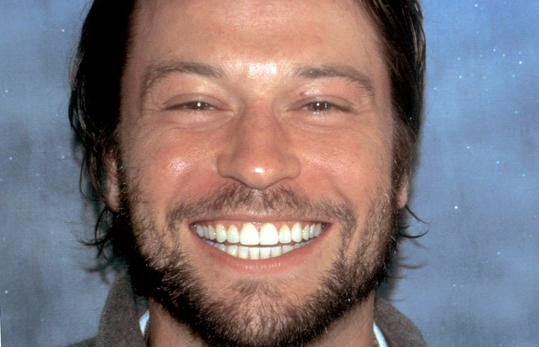 Headshot of Kurt smiling showing teeth after smile makeover