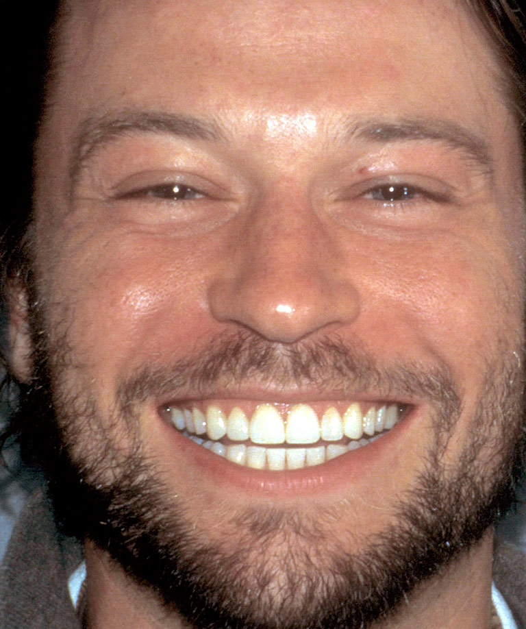 Headshot photo of Kurt smiling showing smile makeover results from Dr. Brooksher