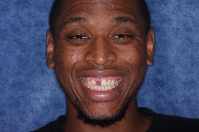 Headshot photo of patient smiling showing missing tooth before dental implant