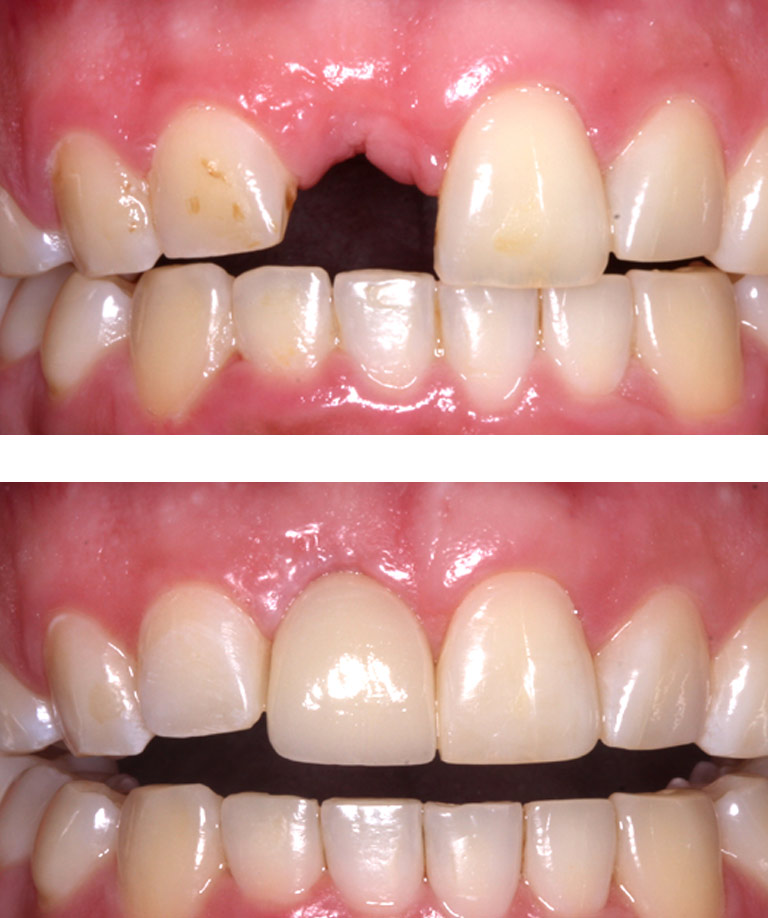 Closeup photos of patient smiling showing dental implant results