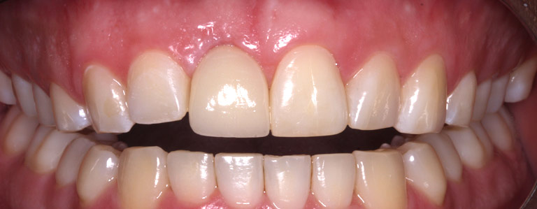 Closeup photo of patient smiling showing new tooth after dental implant