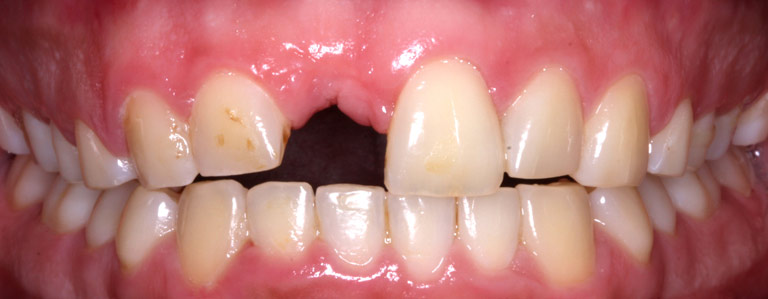 Closeup photo of patient smiling showing missing tooth before dental implant