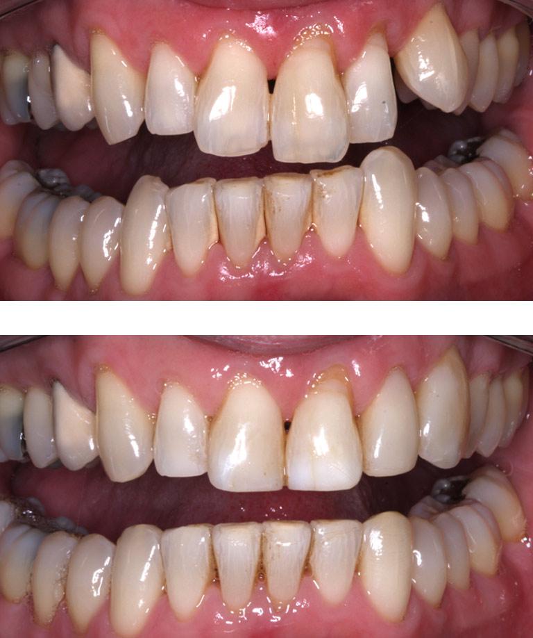 Closeup photos of Pete smiling showing dental bonding results