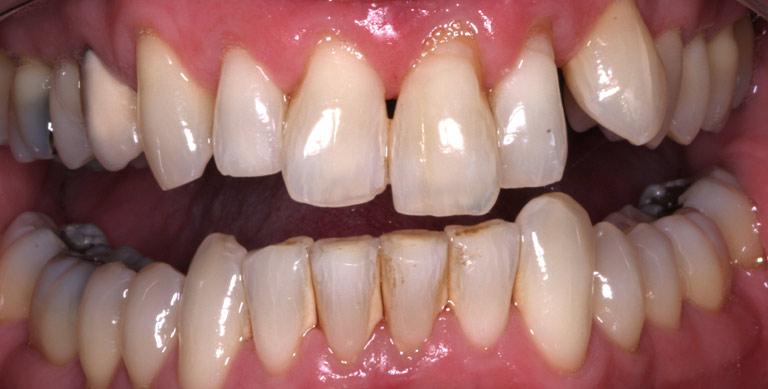 Closeup photo of Pete smiling showing gaps before dental bonding