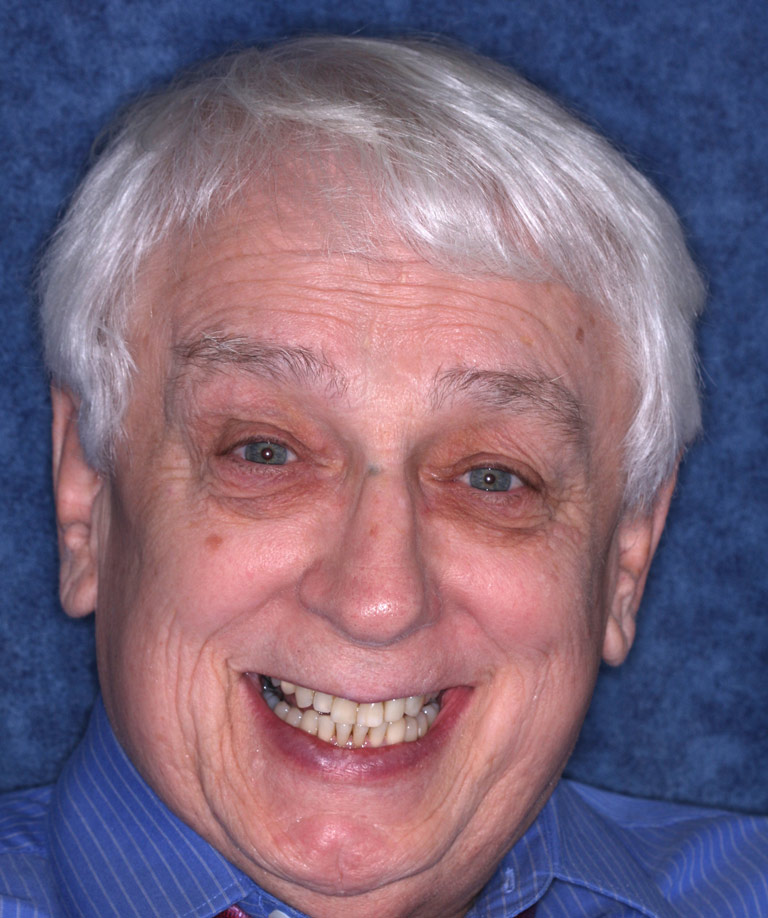 Headshot photo of Pete smiling showing dental bonding results from Dr. Brooksher