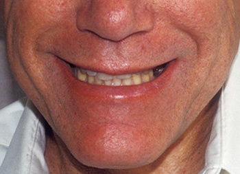 Nose-to-chin before porcelain crowns photo of a male patient smiling. His teeth are worn, uneven, and have spaces between them.