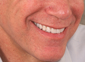 Nose-to-chin after porcelain crowns photo of a male patient smiling. His previously worn and uneven teeth were restored with porcelain crowns from Baton Route dentist Dr. Brooksher.