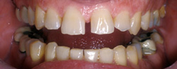 Close-up before porcelain crowns photo of a male patient's smile. His teeth are worn, uneven, and have spaces between them.