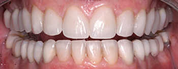 Close-up after porcelain crowns photo of a male patient's smile. His previously worn, uneven, and poorly spaced teeth were restored by Dr. Brooksher of Baton Rouge.