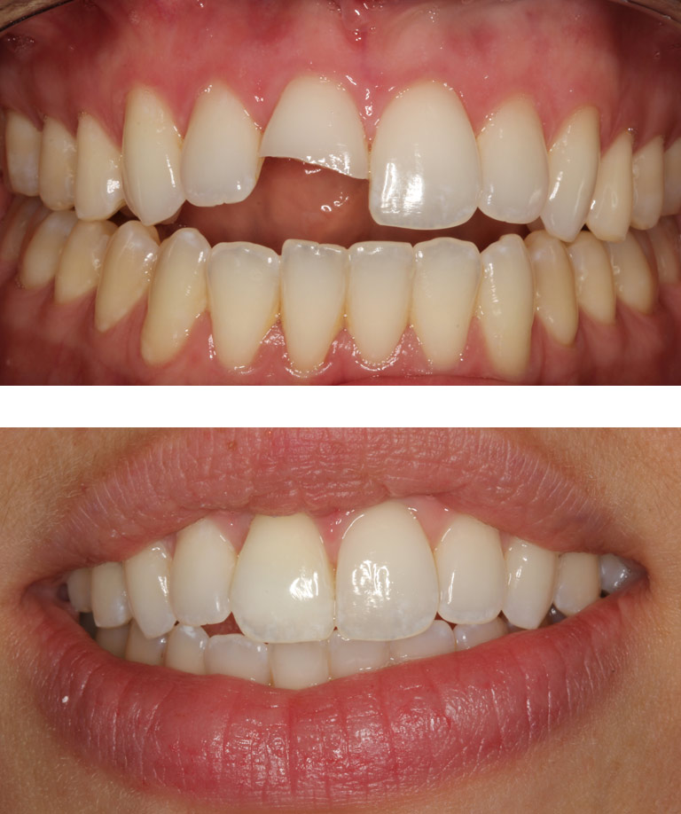 Closeup photos of Sydney smiling showing dental bonding results