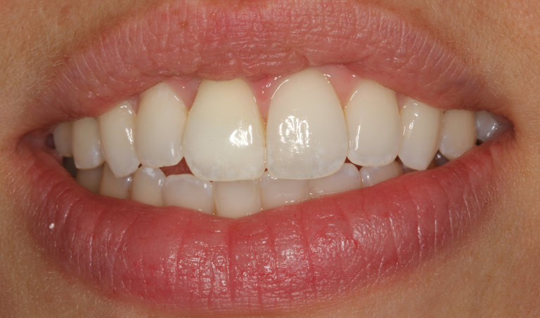 Closeup photo of Sydney smiling showing dental bonding results