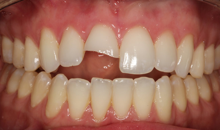 Closeup photo of Sydney smiling showing broken tooth before dental bonding