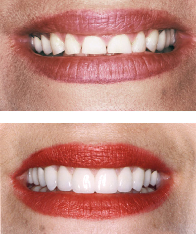Closeup photos of Teddine smiling showing smile makeover results