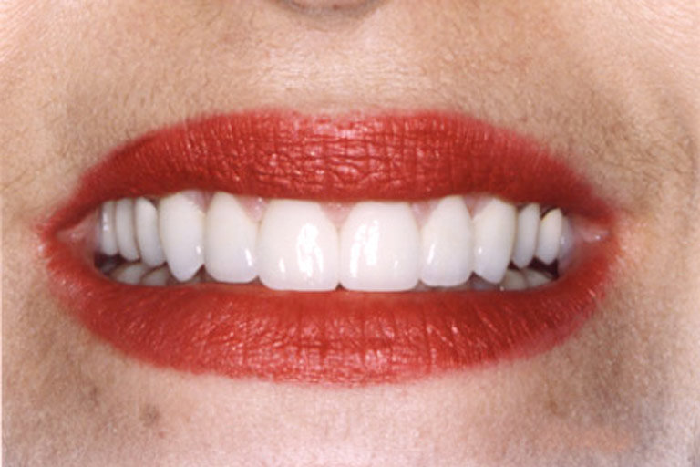 Closeup photo of Teddine smiling showing smile makeover results