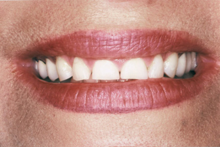 Closeup photo of Teddine smiling showing gaps before smile makeover