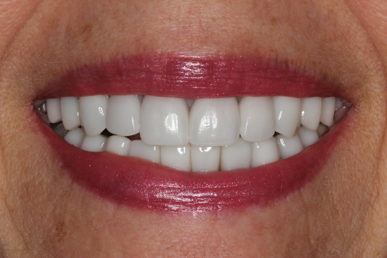 Closeup photo of Ann smiling after smile makeover