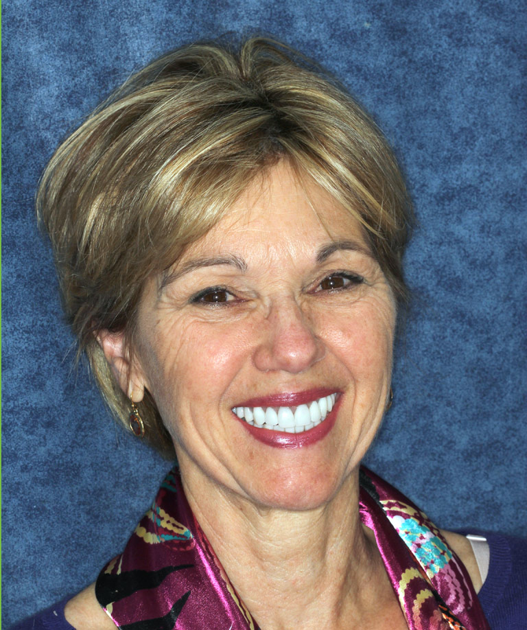 Headshot photo of Ann showing smile makeover results from Dr. Brooksher