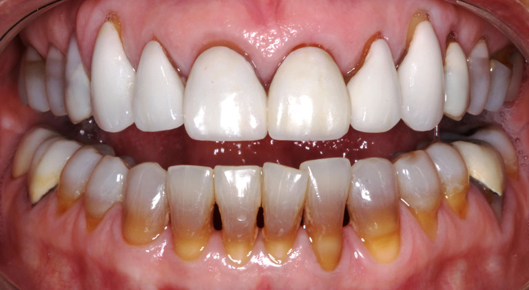 Closeup photo of Ann smiling showing dark gumline teeth before smile makeover