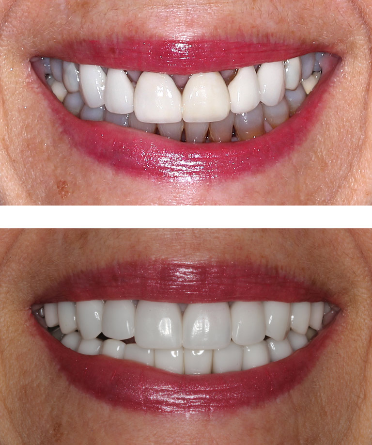 Closeup photos of Ann smiling showing smile makeover results