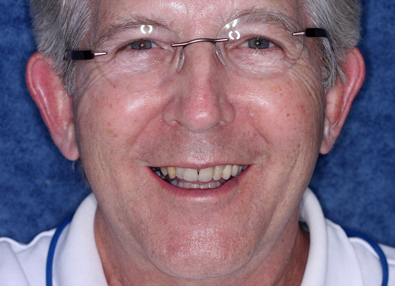 Headshot photo of Ben smiling showing worn yellow eeth before smile makeover