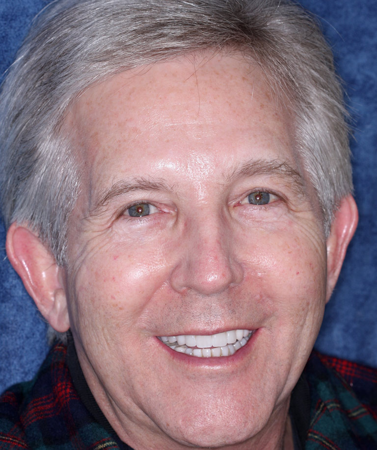 Headshot photo of Ben smiling showing smile makeover results from Dr. Brooksher