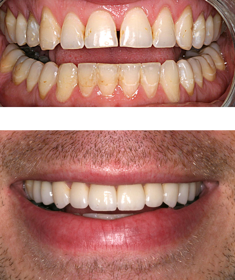 Closeup photos of Brent smiling showing smile makeover results