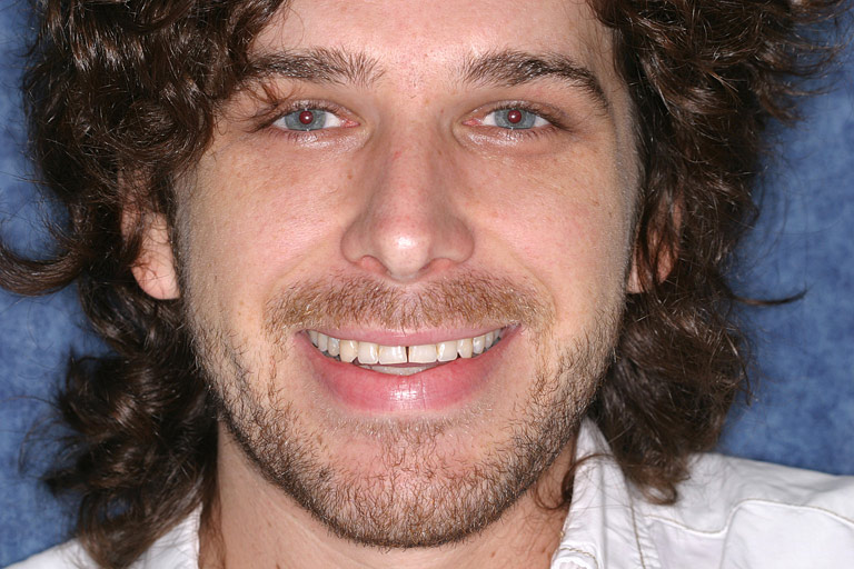 Headshot photo of Brent smiling showing worn yellow teeth before smile makeover