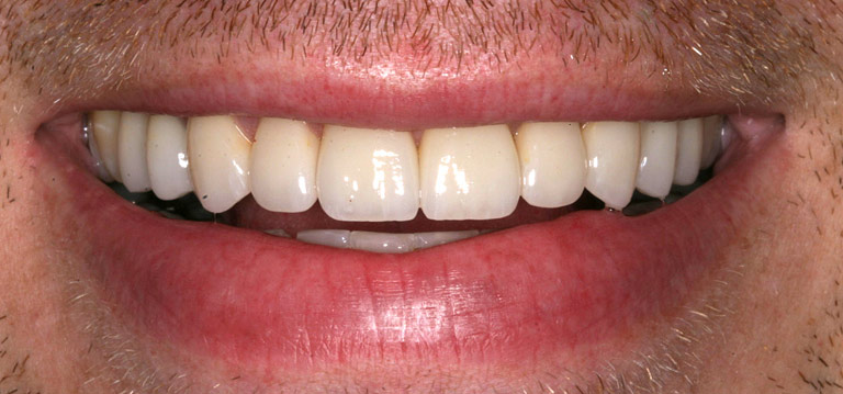 Closeup photo of Brent smiling after smile makeover