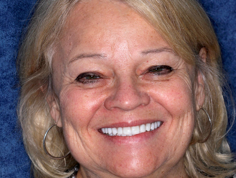 Headshot photo of Carolyn smiling after smile makeover