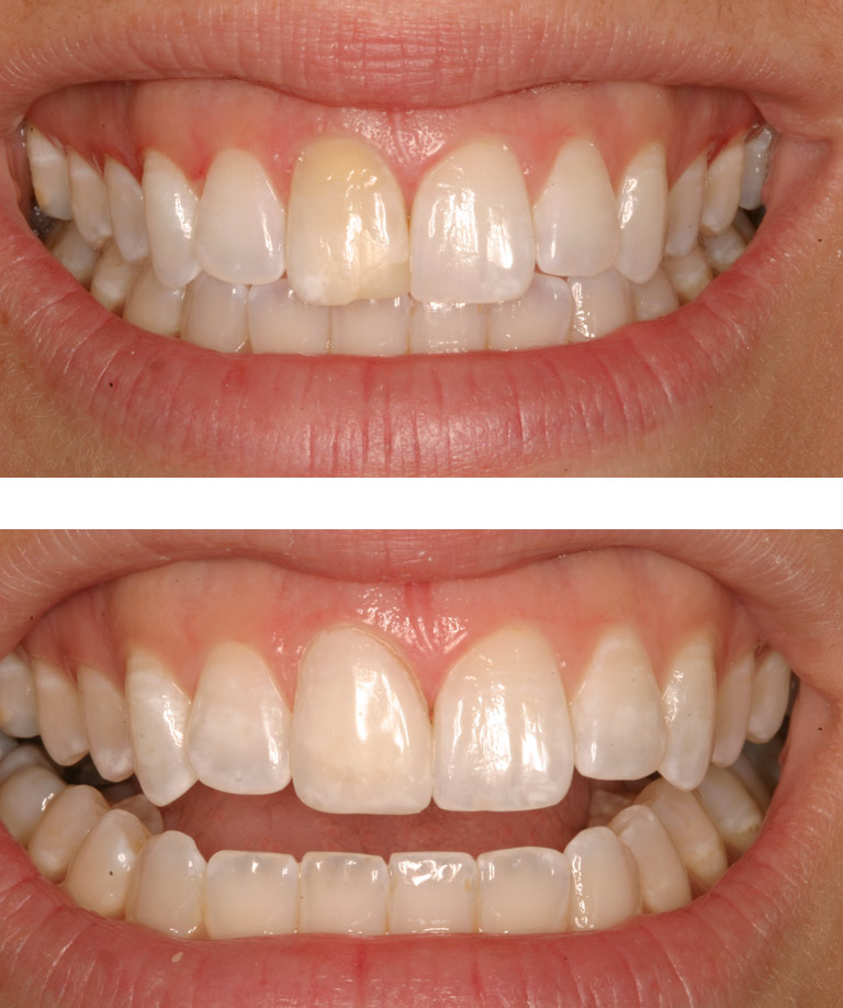 Closeup photos of Cathy smiling showing porcelain veneer results